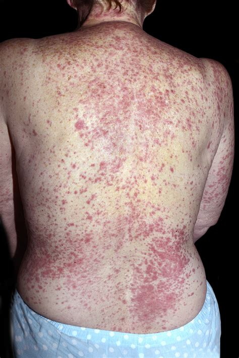 Contrast media and cutaneous reactions