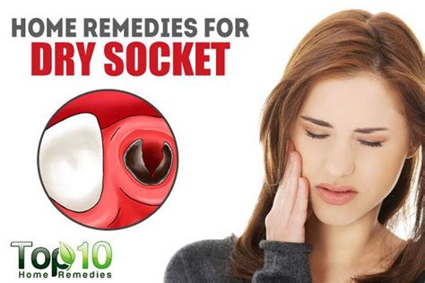 Home Remedies for Dry Socket | Top 10 Home Remedies