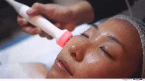 """We Tried The Famous """"Hollywood"""" Carbon Laser Peel"""