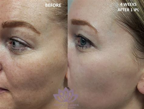 IPL before and after NEW - Revive Laser and Skin Clinic